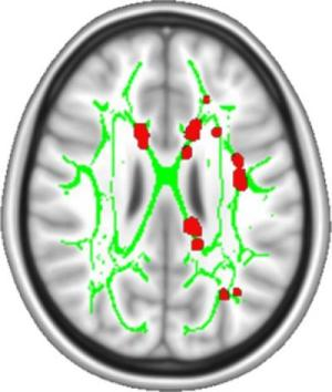 chronic pain_brain_scan_study
